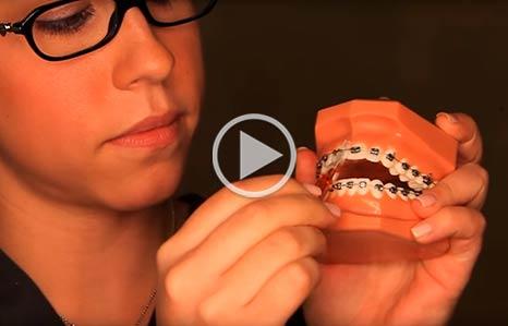 Brushing and Flossing iSmile Orthodontics Seattle WA