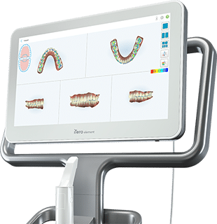 iTero iSmile Orthodontics Seattle WA