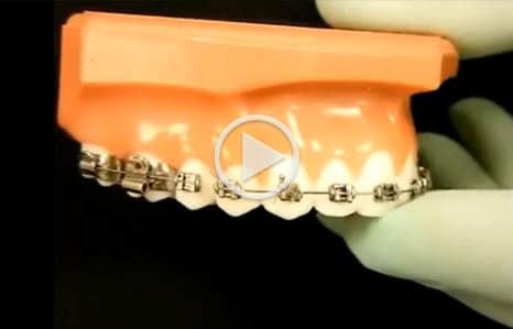 Emergency Care iSmile Orthodontics Seattle WA